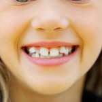 4 Signs It's Time to Get Braces