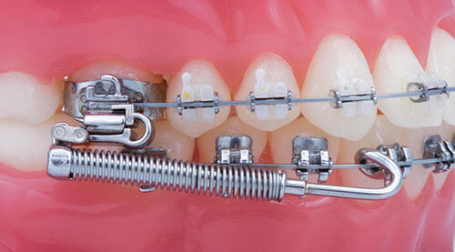 Forsus Braces Demo